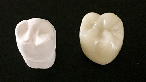 Porcelain crown prior to placement