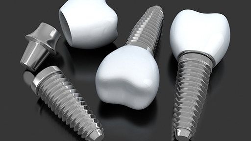 Animated implant crowns
