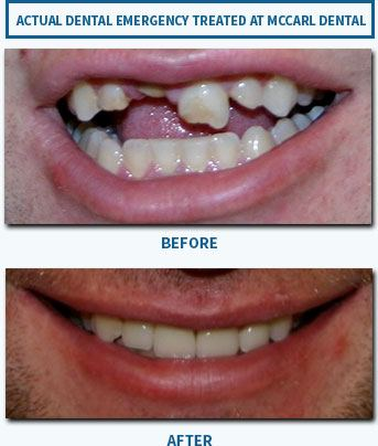 Before and after image of emergency patient with lost tooth