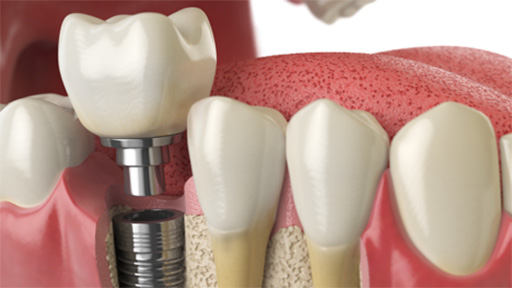 Animation of dental implant single tooth replacement process
