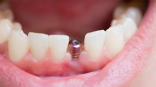 Closeup of mouth with dental implant post in place