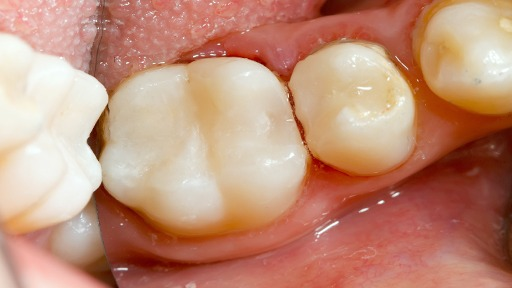 Closeup of tooth-colored fillings