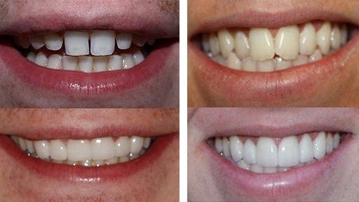 before and after photos of porcelain veneer work