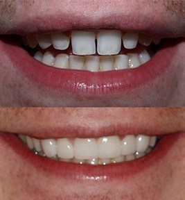 Before and After No Prep Thin Porcelain Veneers