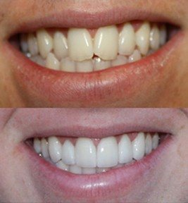 Before and After Photo of Thin Veneers