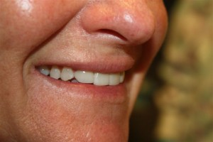 Dental patient delighted with no prep veneers