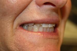 Discolored and irregular shaped teeth before no prep veneers