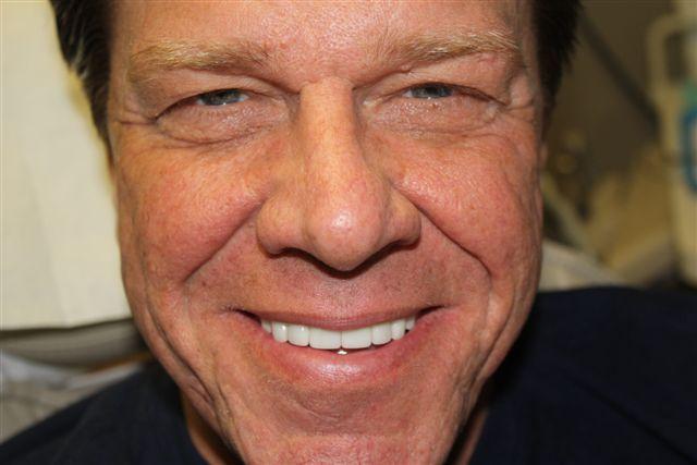 No prep veneers - Rick Jones after dental veneers