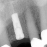 Dental Implant in Millersville Maryland
