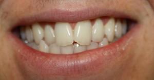 Dental patient before minimal prep veneers