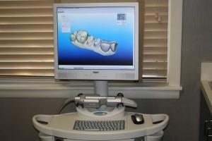 Cadent iTero digital scanner at McCarl Dental Group