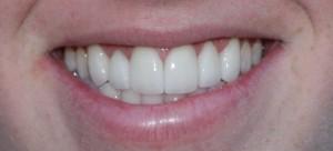 McCarl dental patient with thin dental veneers