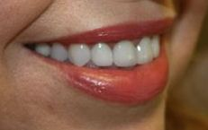 Dental patient after teeth whitening, all porcelain crowns, thin veneers and gum recontouring.