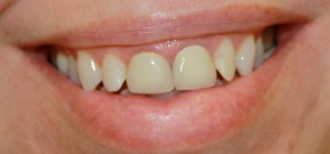 Dental patient with crowns on her two front teeth made by fusing porcelain to metal