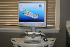 iTero digital oral scanner at McCarl Dental Group