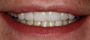 McCarl Patient after thin veneers