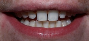 McCarl Patient before no prep veneers
