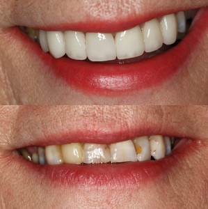 Greenbelt Smile Makeover