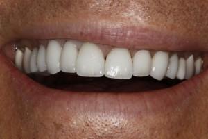 Severna Park Dental Patient Pain Free after Same Day Dental Emergency Care
