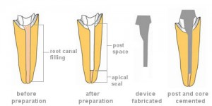 Post and Core Dental Procedure