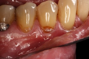 Tooth colored fillings can repair this root caries before it becomes too advanced