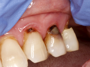 Root caries on lateral incisor, canine and first bicuspid