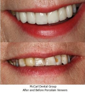 After and Before Porcelain Veneers