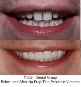 Before - After No Prep Veneers