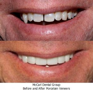Before - After Poreclain Veneers
