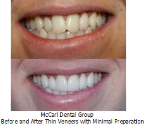 Before - After Minimal Prep Thin Veneers