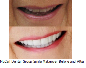 Before - After Smile Makeover