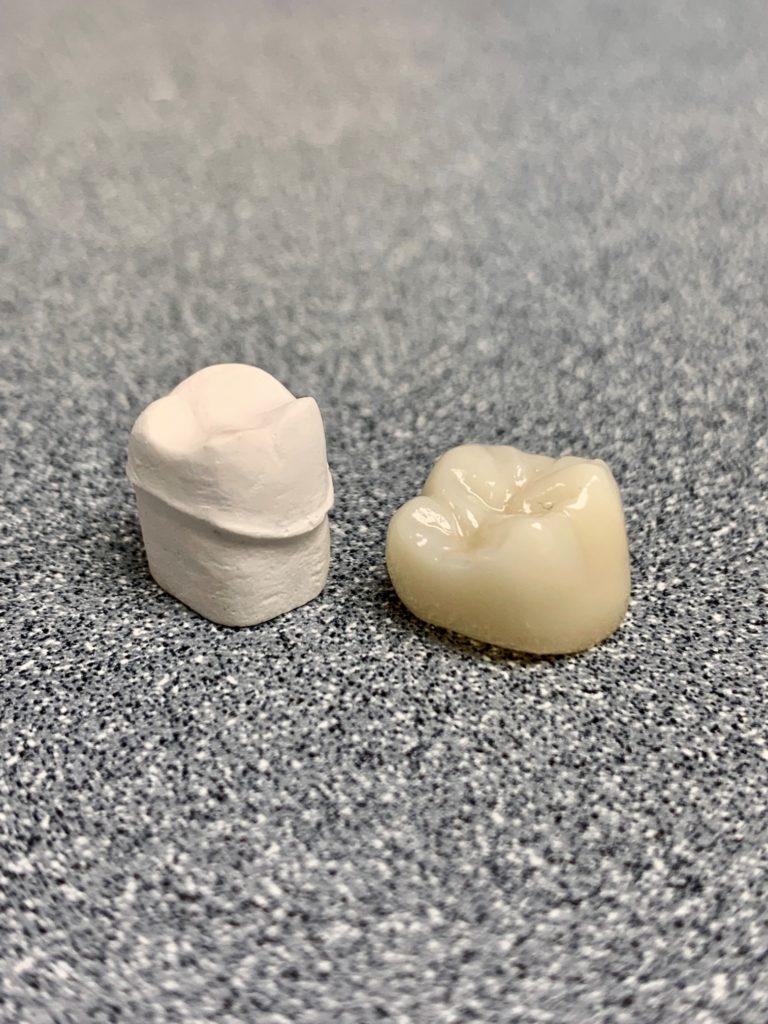 Dental crown restoration model
