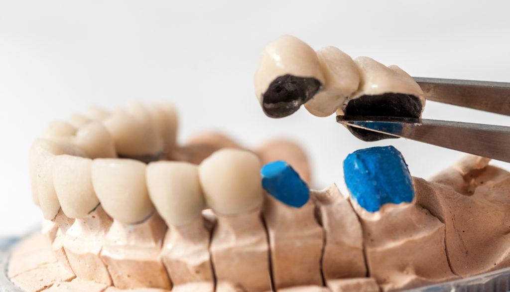 Model smile with dental crown restoration